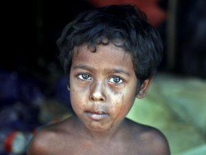 چهره های روهینگیا مجله عکس نوریاتو