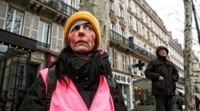 مجروحان فرانسه